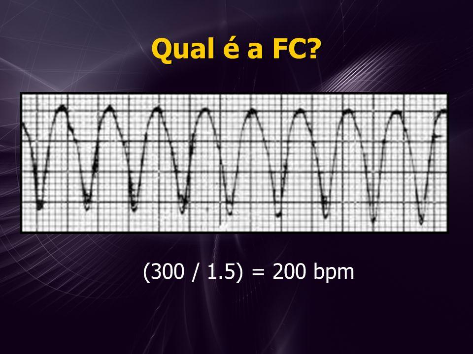 Qual é a FC (300 / 1.5) = 200 bpm