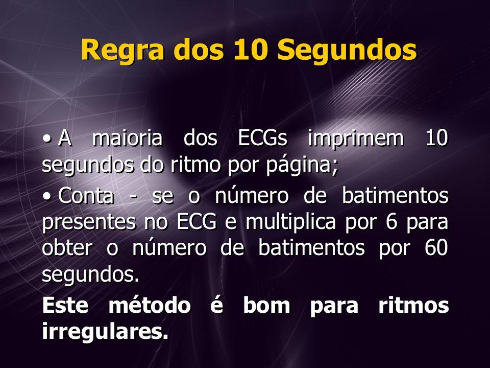Regra dos 10 Segundos A maioria dos ECGs imprimem 10 segundos do ritmo por página;