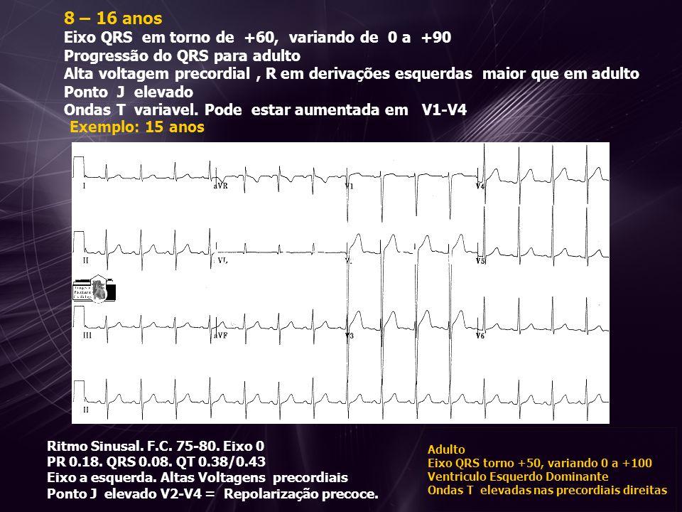 8 – 16 anos Eixo QRS em torno de +60, variando de 0 a +90 Progressão do QRS para adulto Alta voltagem precordial , R em derivações esquerdas maior que em adulto Ponto J elevado Ondas T variavel. Pode estar aumentada em V1-V4