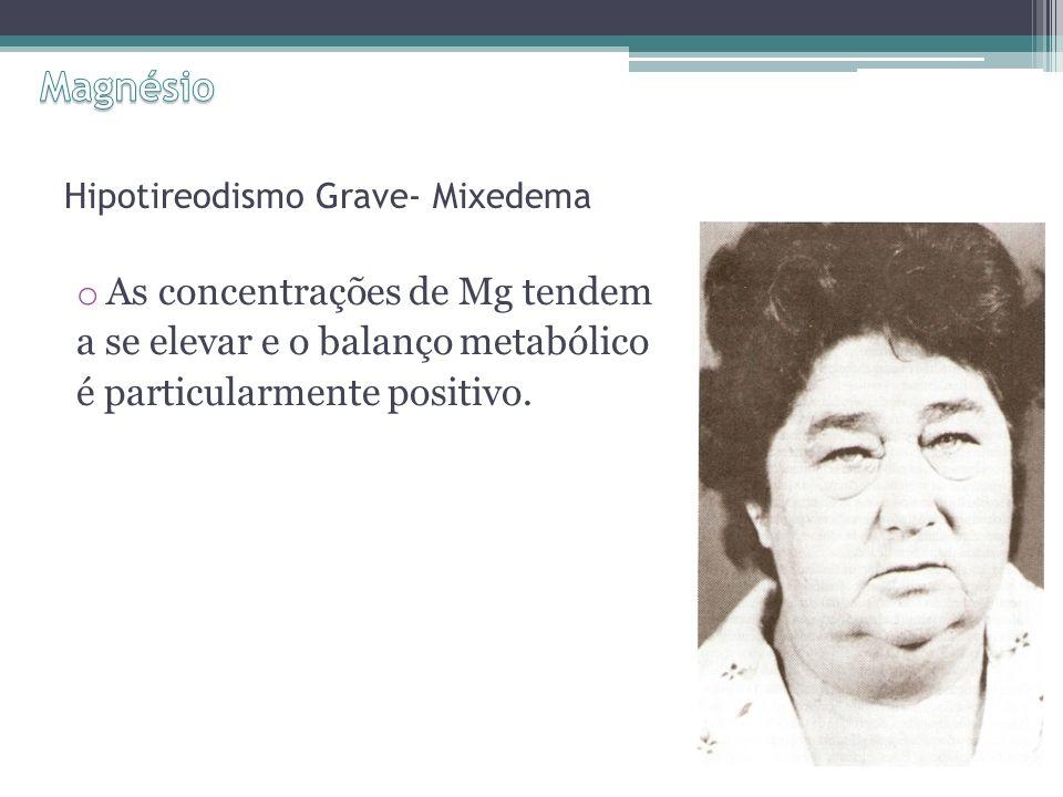 Hipotireodismo Grave- Mixedema