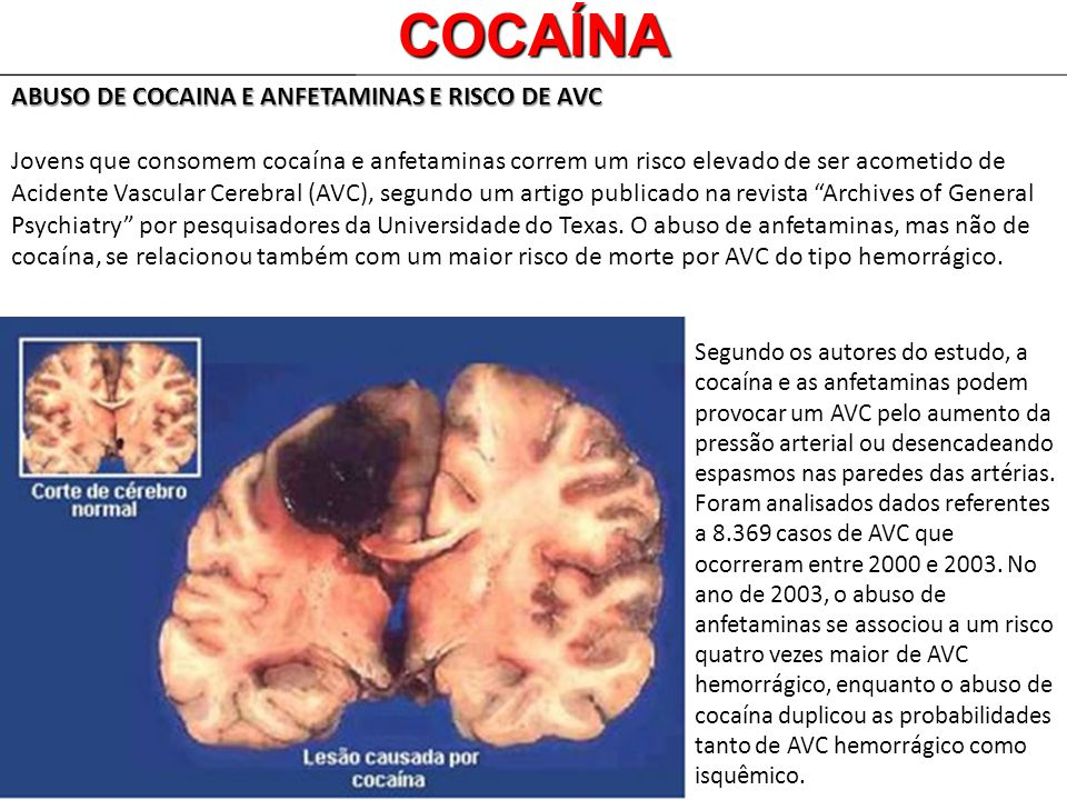 COCAÍNA ABUSO DE COCAINA E ANFETAMINAS E RISCO DE AVC