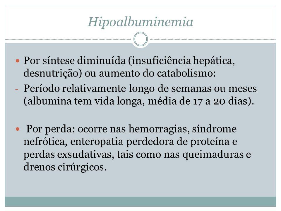 Hipoalbuminemia Por síntese diminuída (insuficiência hepática, desnutrição) ou aumento do catabolismo: