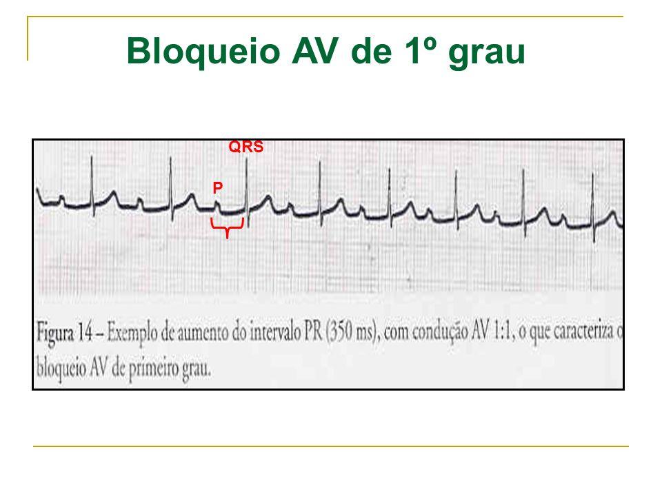 Bloqueio AV de 1º grau QRS P