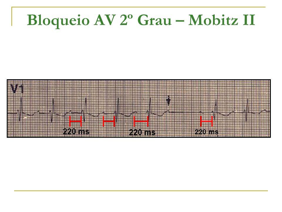 Bloqueio AV 2º Grau – Mobitz II