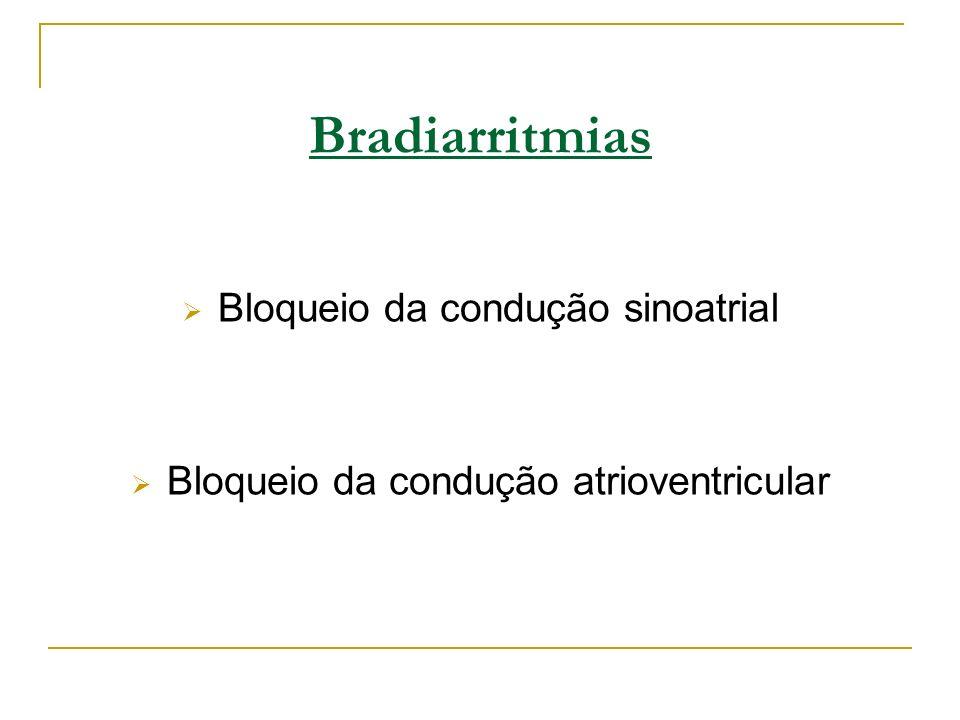 Bradiarritmias Bloqueio da condução sinoatrial