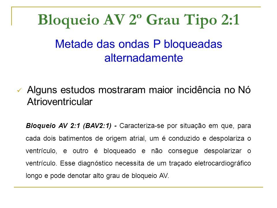 Bloqueio AV 2º Grau Tipo 2:1