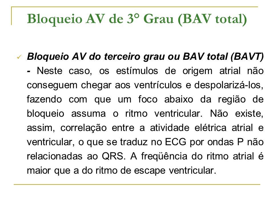 Bloqueio AV de 3° Grau (BAV total)