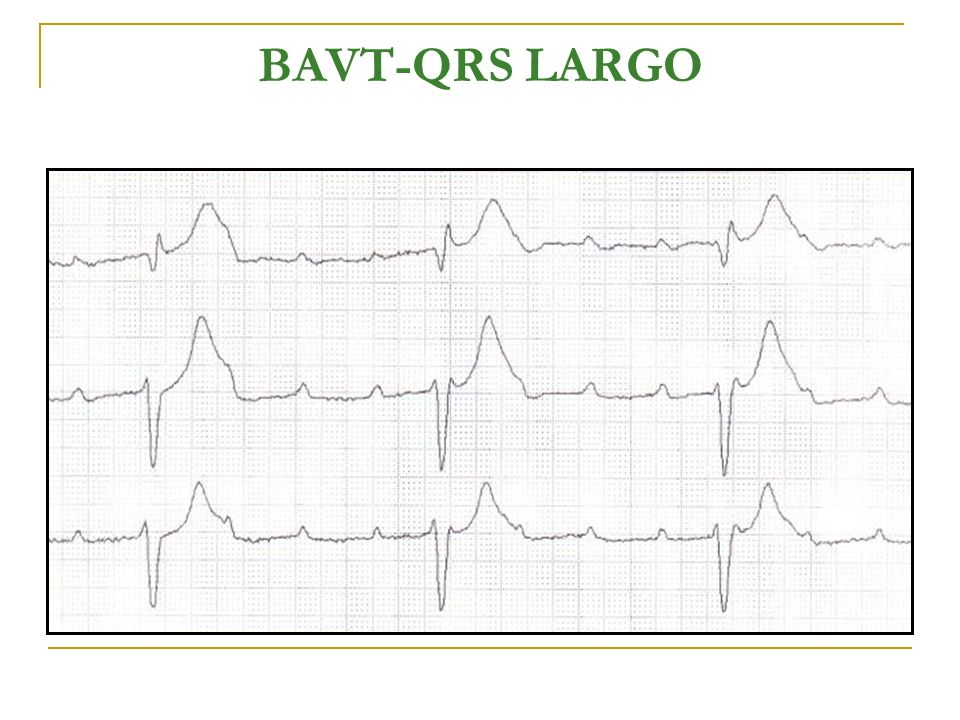 BAVT-QRS LARGO