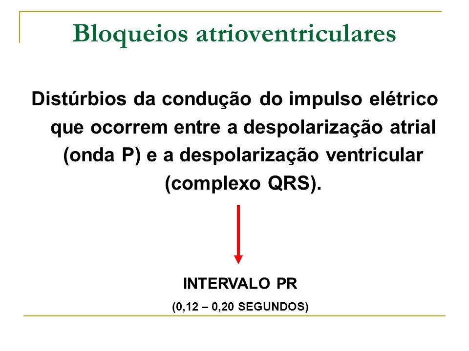 Bloqueios atrioventriculares
