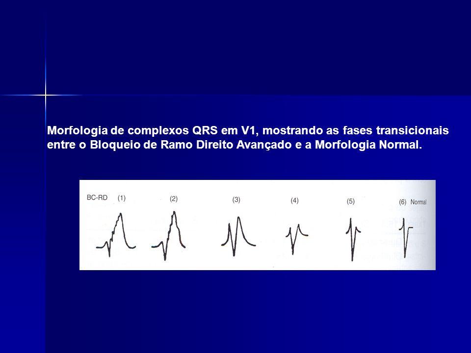 Morfologia de complexos QRS em V1, mostrando as fases transicionais entre o Bloqueio de Ramo Direito Avançado e a Morfologia Normal.