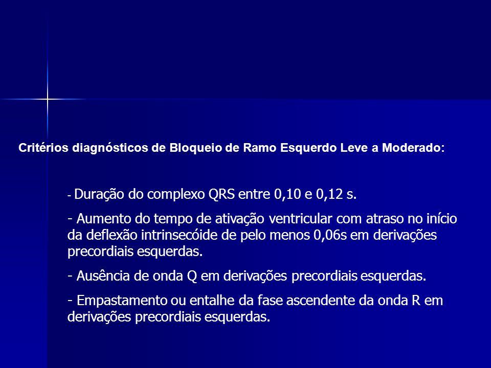 - Ausência de onda Q em derivações precordiais esquerdas.
