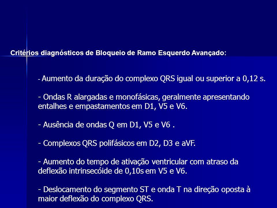 - Ausência de ondas Q em D1, V5 e V6 .