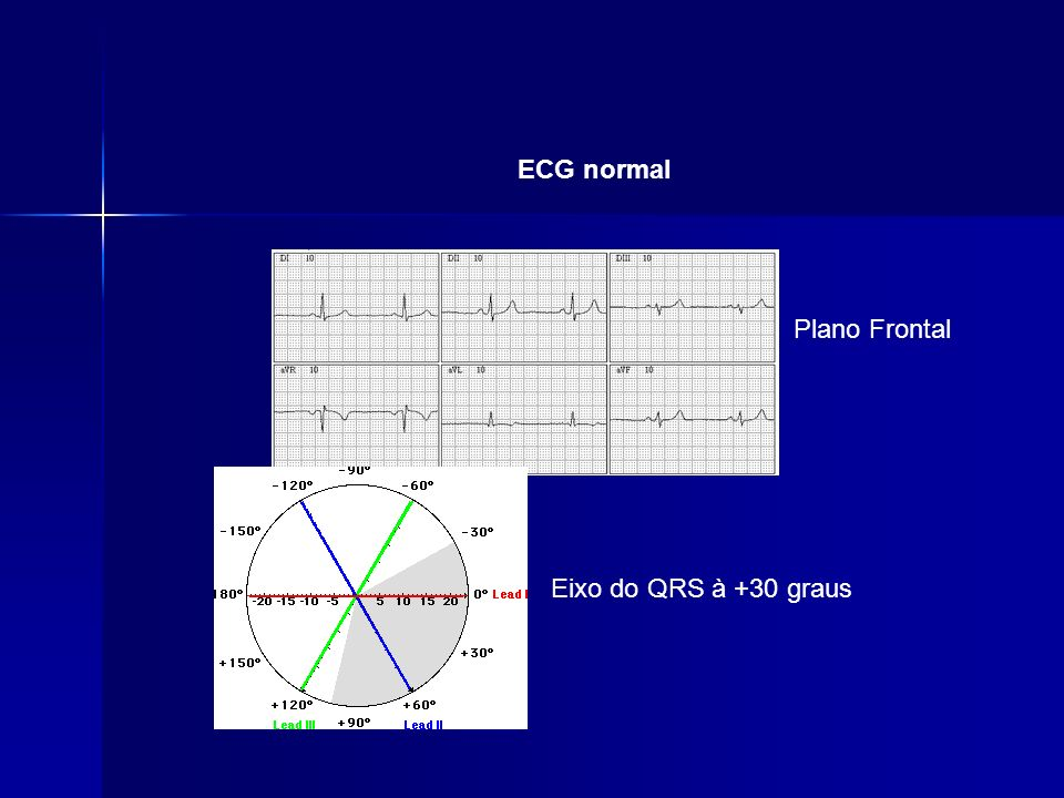 ECG normal Plano Frontal Eixo do QRS à +30 graus