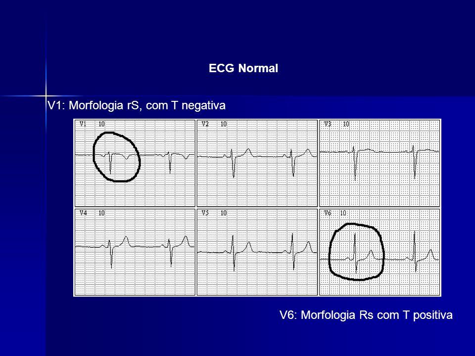 ECG Normal V1: Morfologia rS, com T negativa V6: Morfologia Rs com T positiva