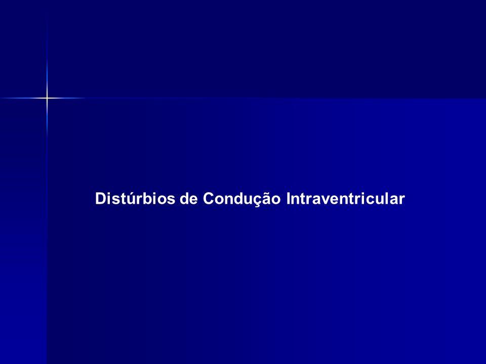 Distúrbios de Condução Intraventricular