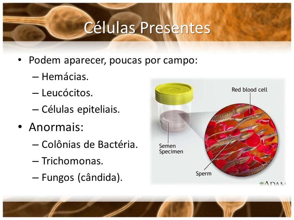 Células Presentes Anormais: Podem aparecer, poucas por campo: