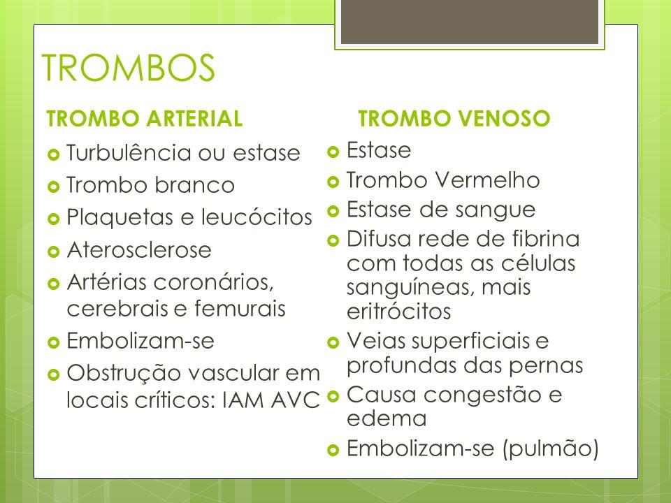 TROMBOS TROMBO ARTERIAL TROMBO VENOSO Turbulência ou estase