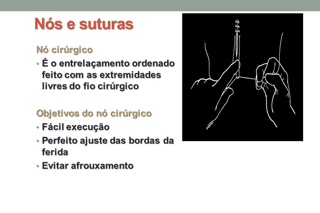 Nós e suturas Nó cirúrgico