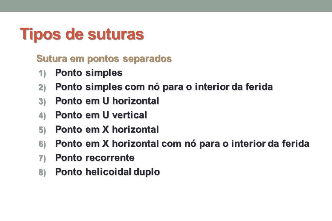 Tipos de suturas Sutura em pontos separados Ponto simples