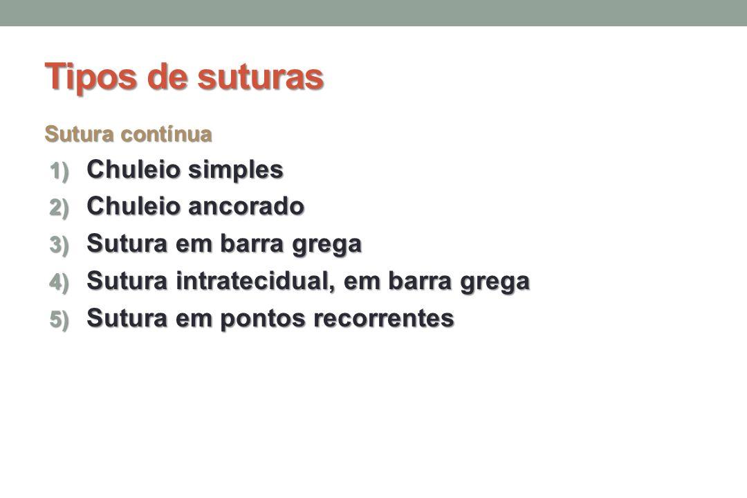 Tipos de suturas Chuleio simples Chuleio ancorado