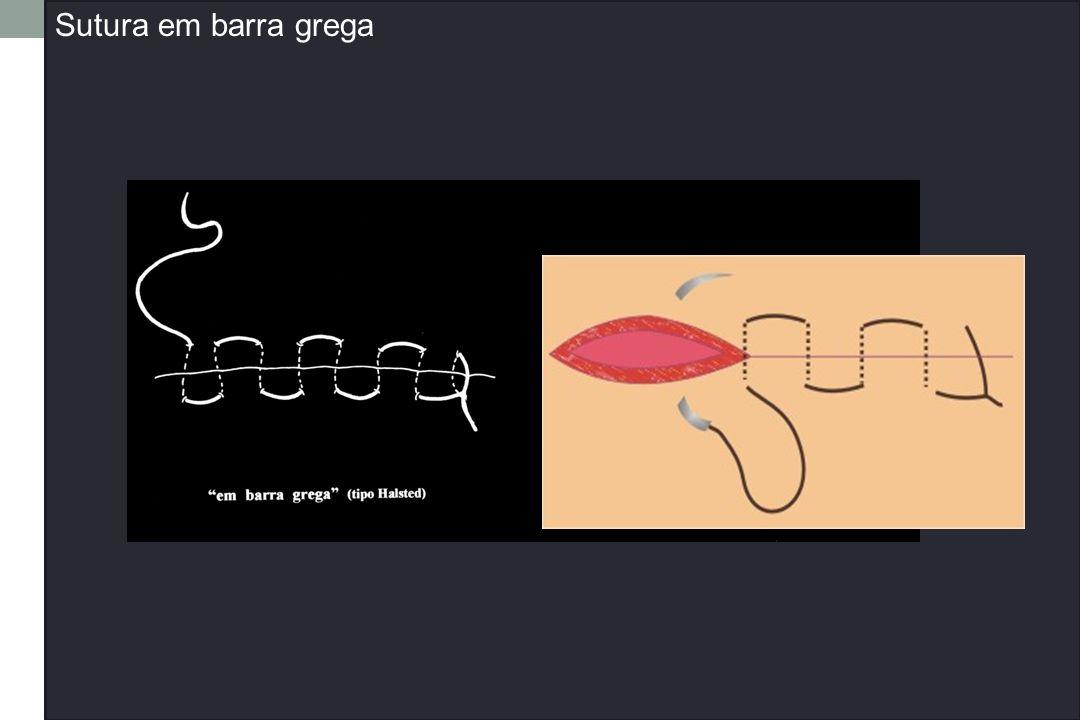 Sutura em barra grega