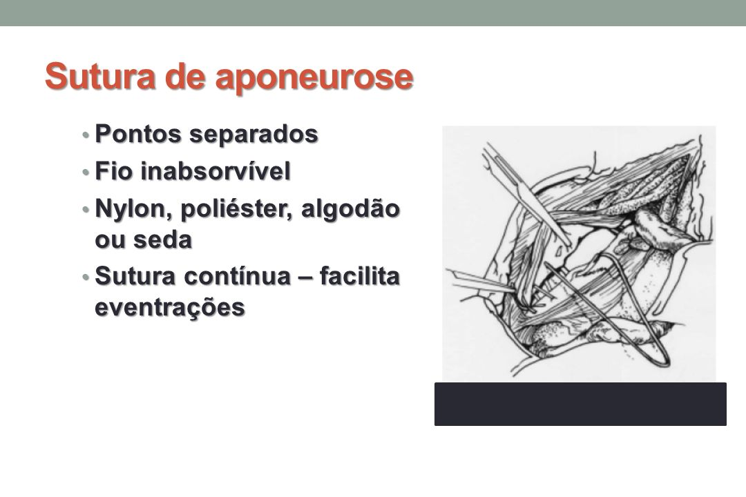 Sutura de aponeurose Pontos separados Fio inabsorvível