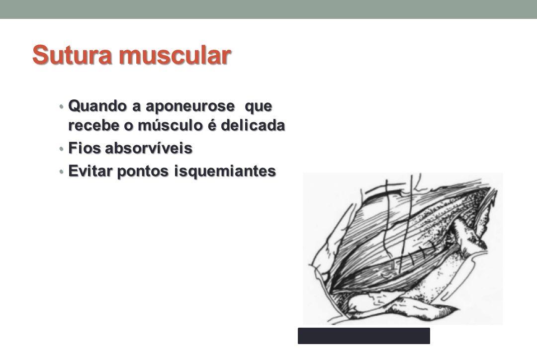 Sutura muscular Quando a aponeurose que recebe o músculo é delicada