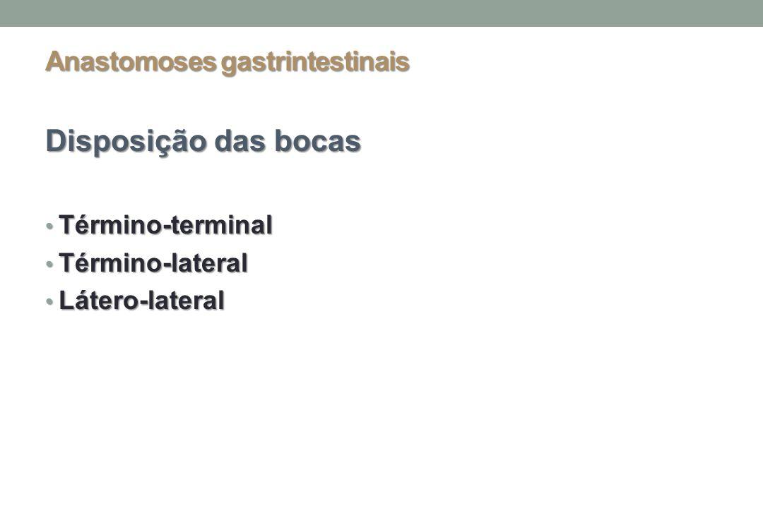 Anastomoses gastrintestinais