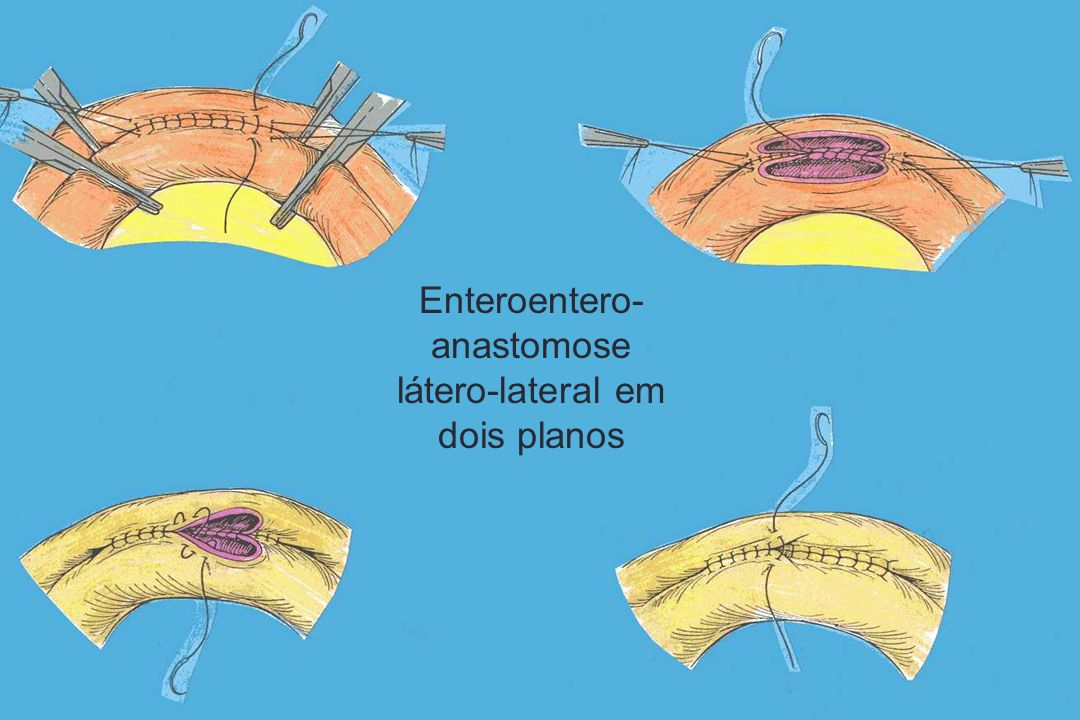 Enteroentero- anastomose látero-lateral em dois planos