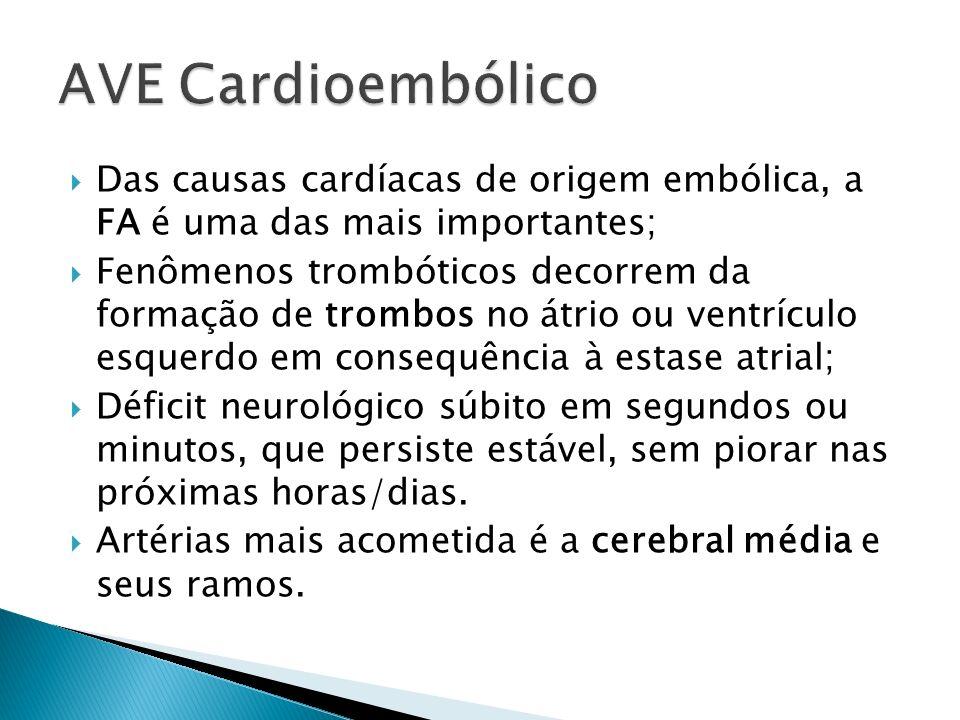 AVE Cardioembólico Das causas cardíacas de origem embólica, a FA é uma das mais importantes;
