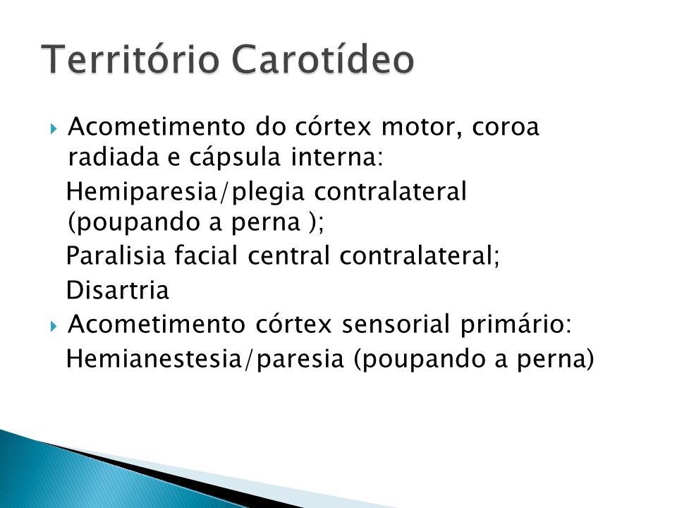 Território Carotídeo Acometimento do córtex motor, coroa radiada e cápsula interna: