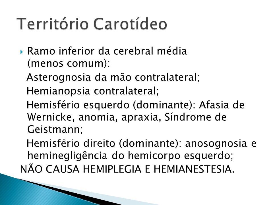 Território Carotídeo Ramo inferior da cerebral média (menos comum):