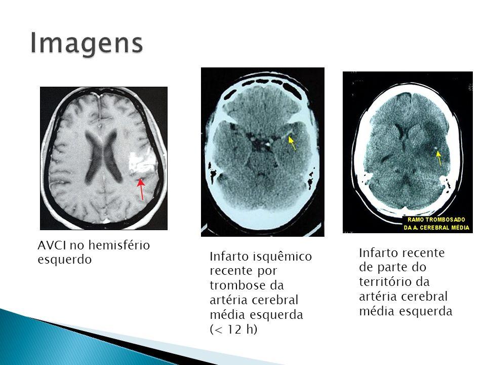 Imagens AVCI no hemisfério esquerdo
