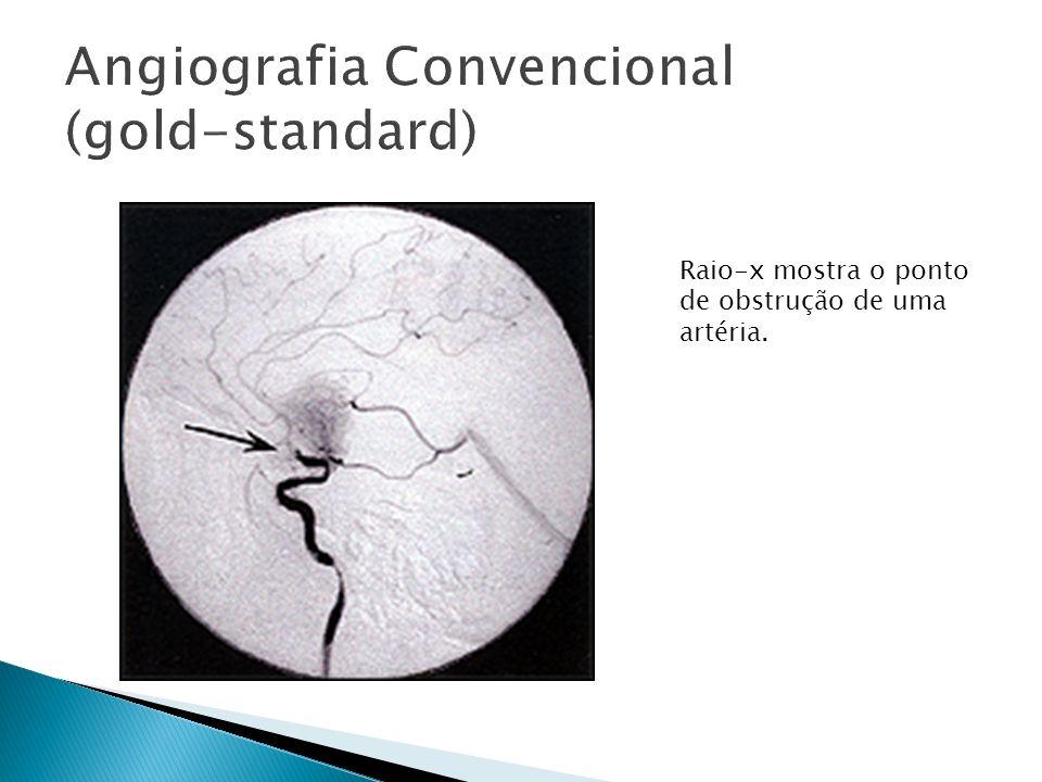 Angiografia Convencional (gold-standard)
