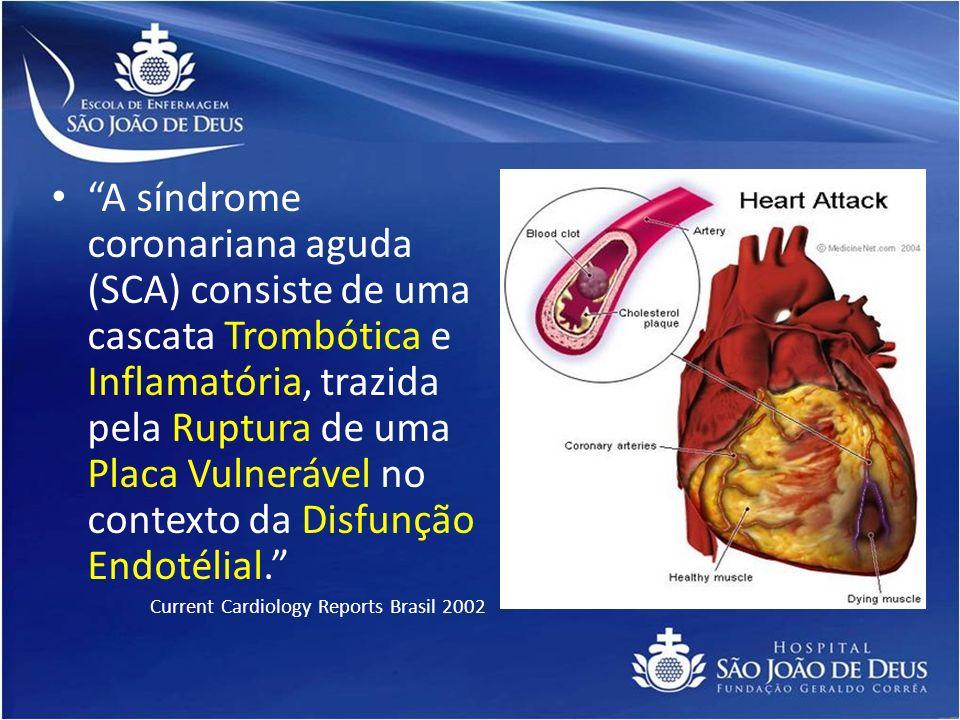 A síndrome coronariana aguda (SCA) consiste de uma cascata Trombótica e Inflamatória, trazida pela Ruptura de uma Placa Vulnerável no contexto da Disfunção Endotélial.