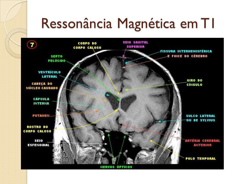 Ressonância Magnética em T1