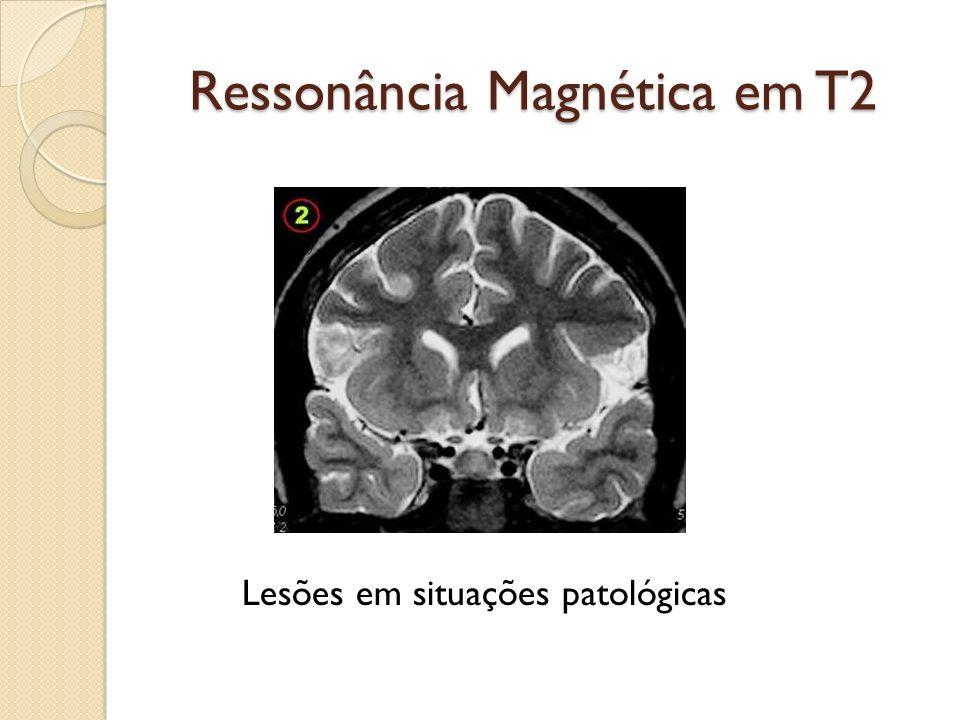 Ressonância Magnética em T2