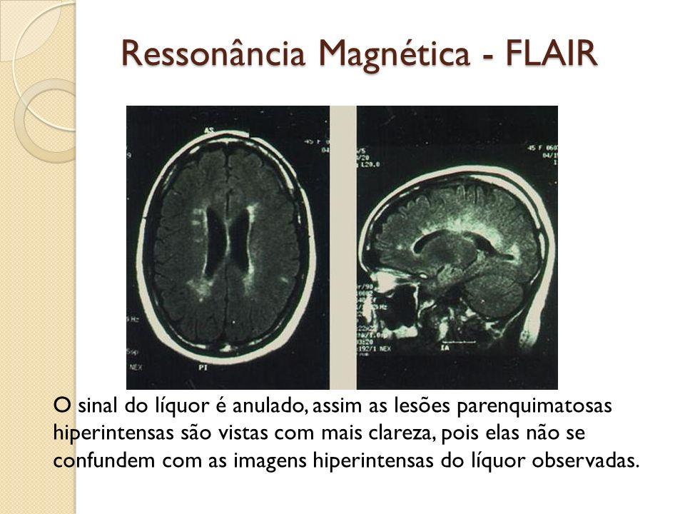 Ressonância Magnética - FLAIR