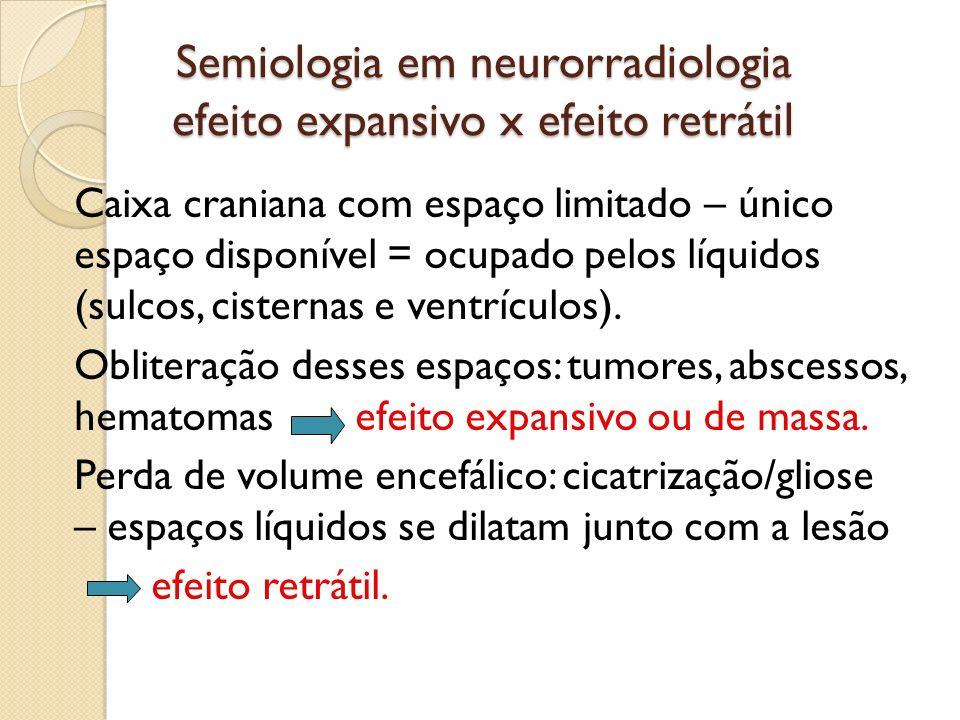 Semiologia em neurorradiologia efeito expansivo x efeito retrátil