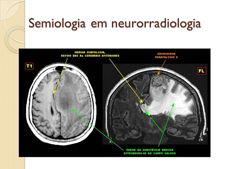 Semiologia em neurorradiologia