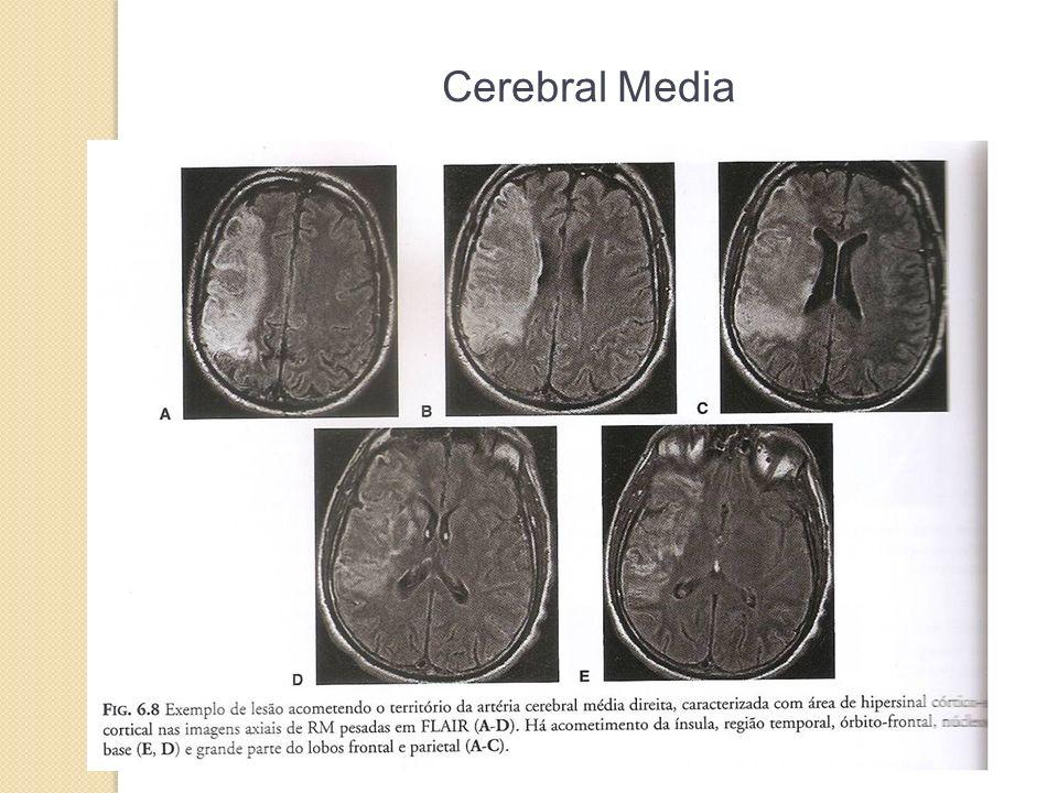 Cerebral Media 33