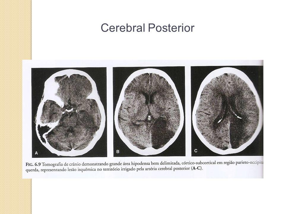 Cerebral Posterior 34