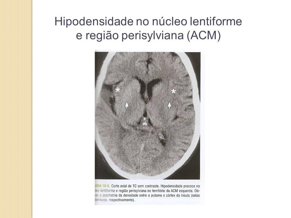 Hipodensidade no núcleo lentiforme e região perisylviana (ACM)