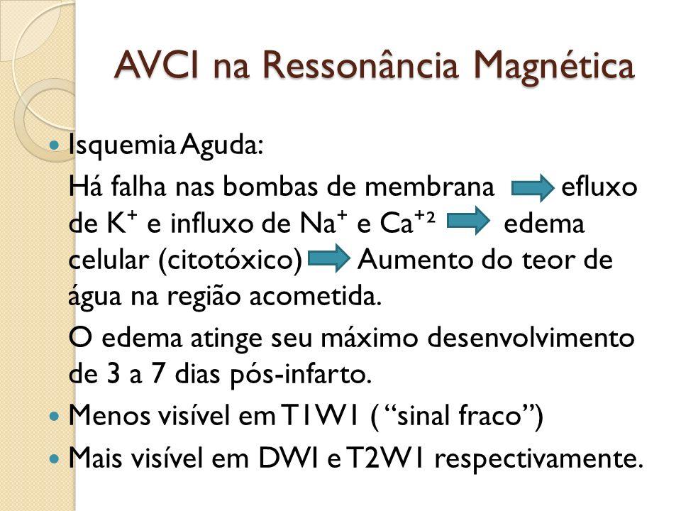 AVCI na Ressonância Magnética