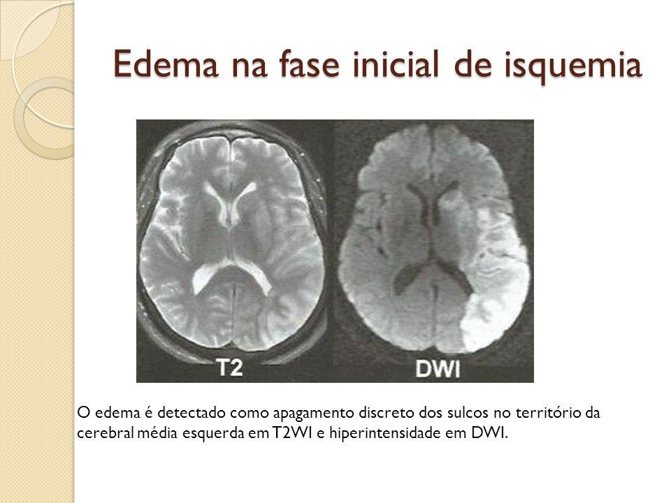 Edema na fase inicial de isquemia