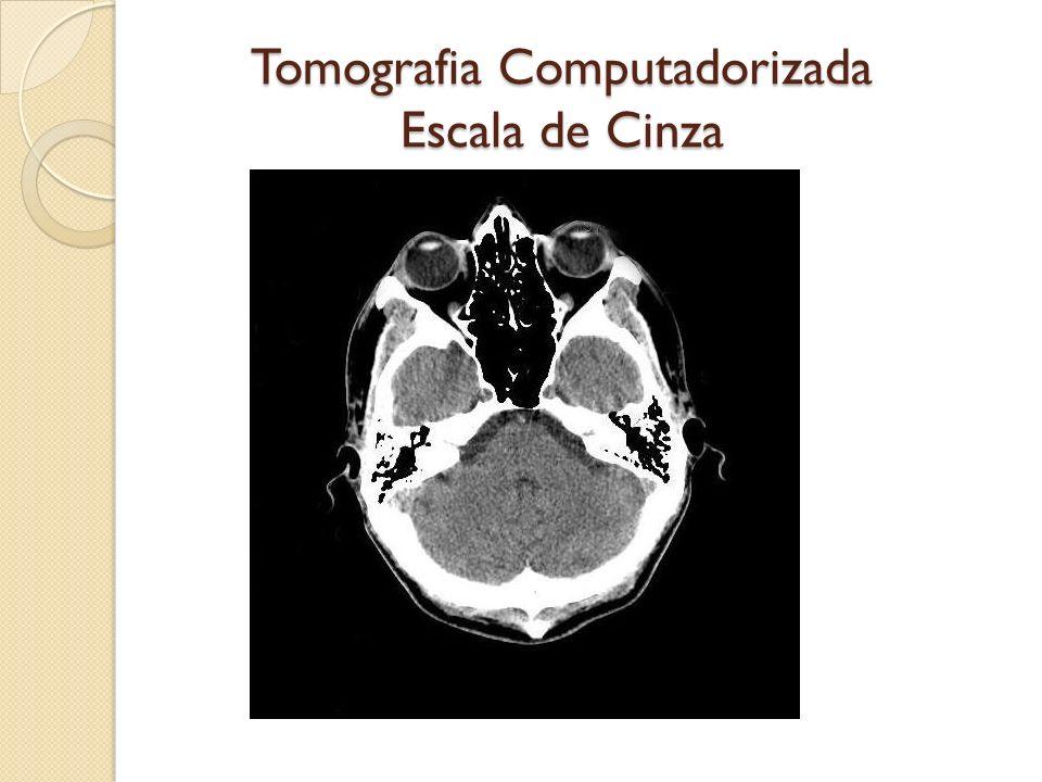 Tomografia Computadorizada Escala de Cinza