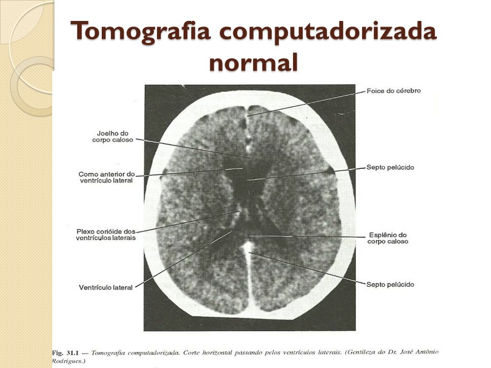 Tomografia computadorizada normal