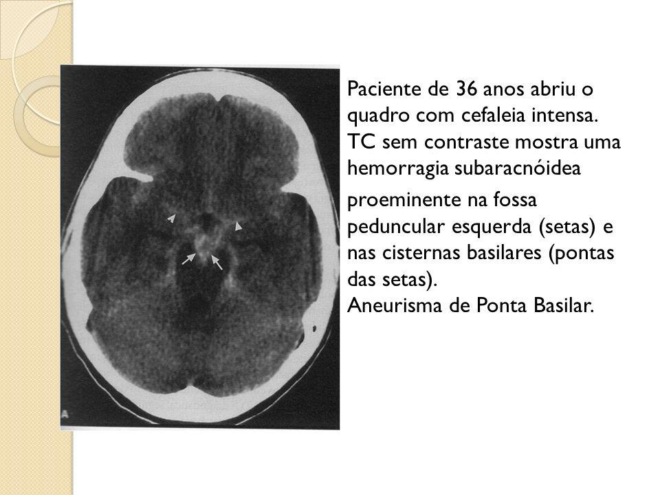 Paciente de 36 anos abriu o quadro com cefaleia intensa