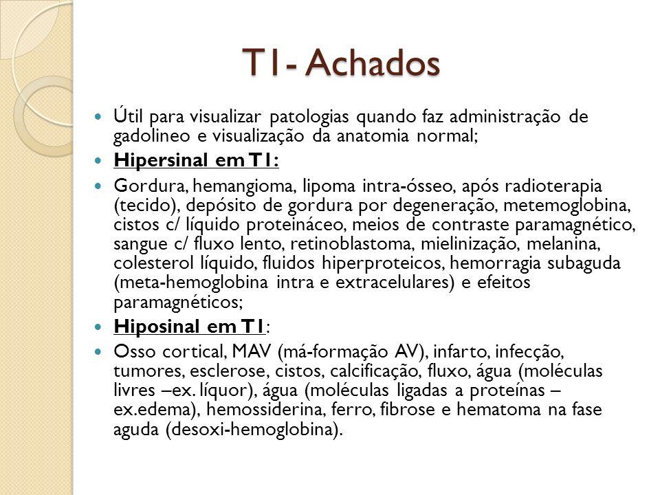 T1- Achados Útil para visualizar patologias quando faz administração de gadolineo e visualização da anatomia normal;