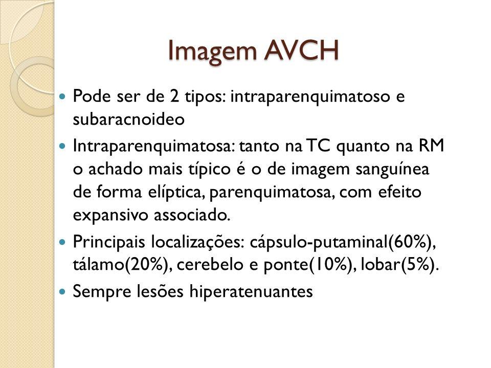 Imagem AVCH Pode ser de 2 tipos: intraparenquimatoso e subaracnoideo